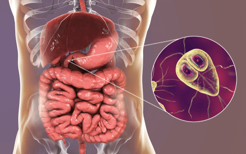 What to eat when have giardia