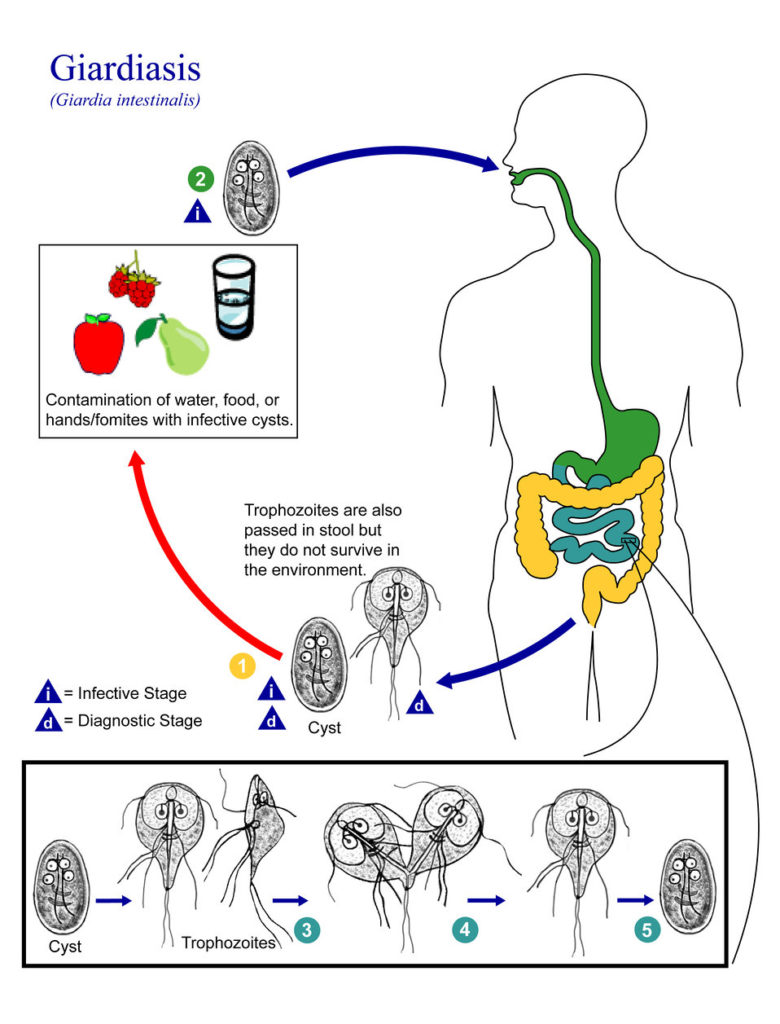 giardia reinfection)