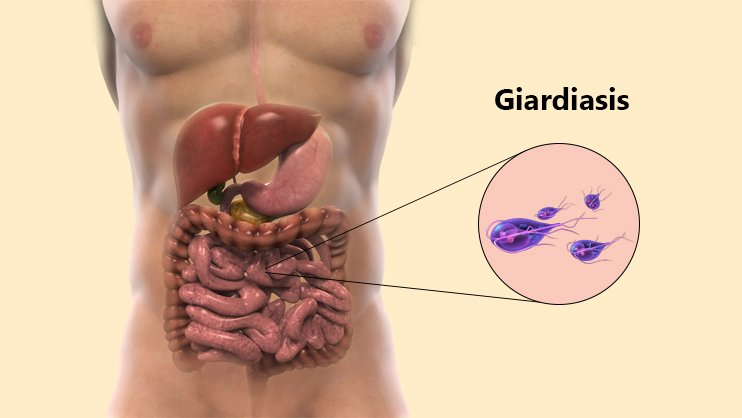 untreated giardia in humans