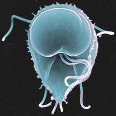 protozoa giardia in humans