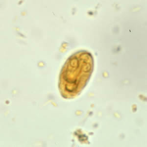 giardia recurrence years later)
